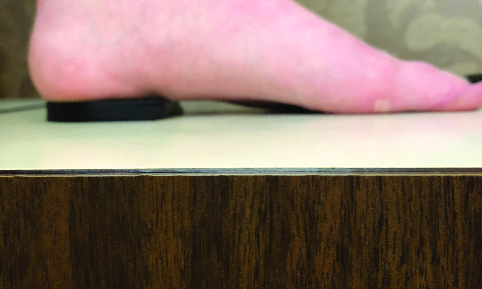 stivali accuratezza delle squame del grasso corporeon